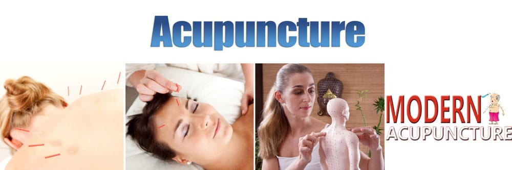 acupuncture-banner